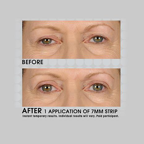 Contours Rx Lids By Design 7mm Eyelid Strips 8002564 Hsn