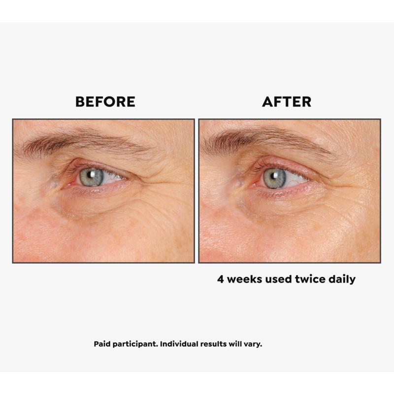 Beauty Bioscience The Beholder Eye Cream - 8451759   HSN